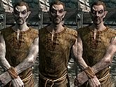 A male Dunmer, before and after becoming a vampire